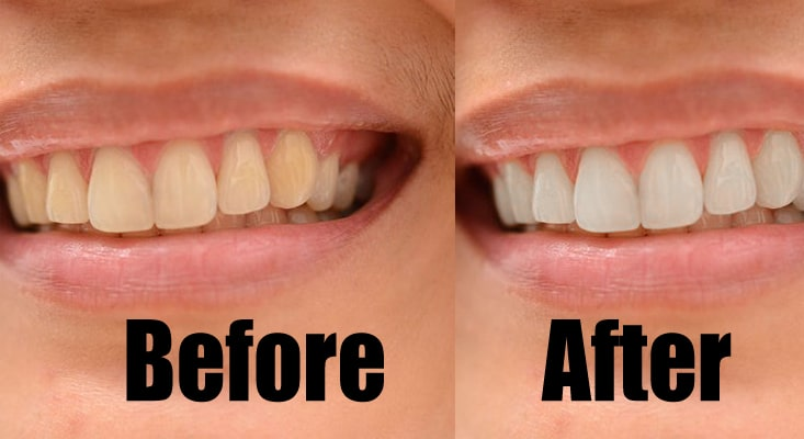 featured-teeth